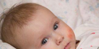 Roter Ausschlag Baby Gesicht