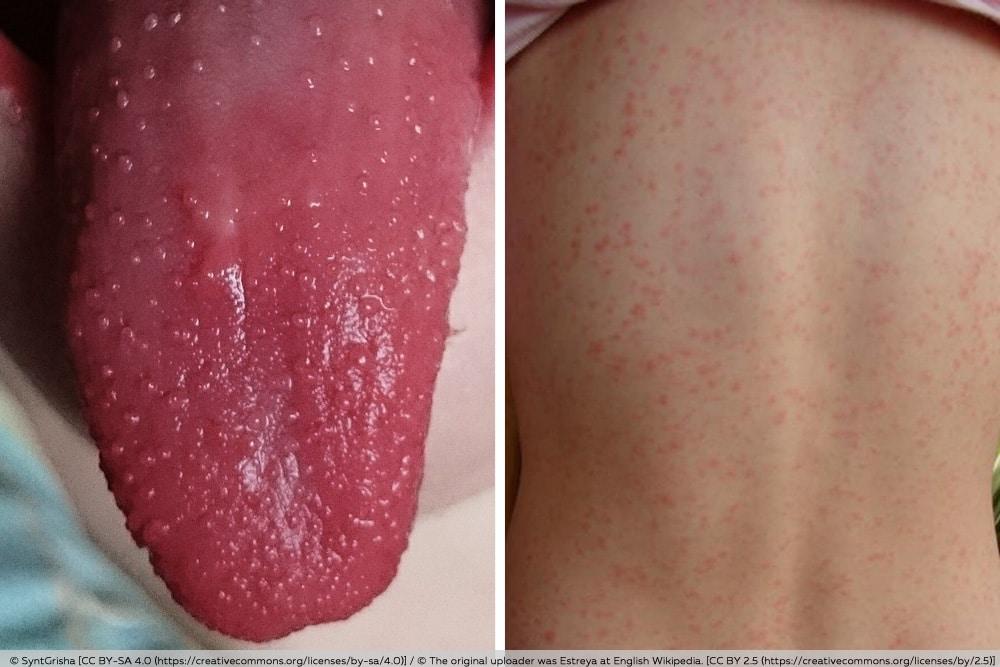 Scharlachsymptome - Himbeerzunge und Hautausschlag