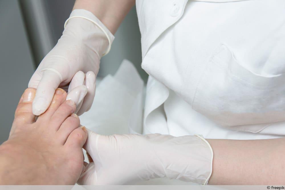 Vorbeugen bei Fußpilz - Ist Wundrose ansteckend