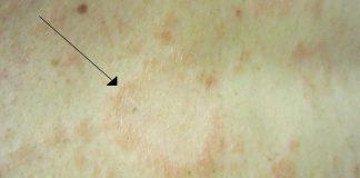 Hautbild mit Röschenflechte