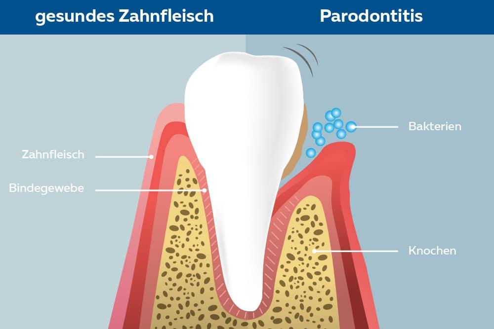 Grafik Parodontitis
