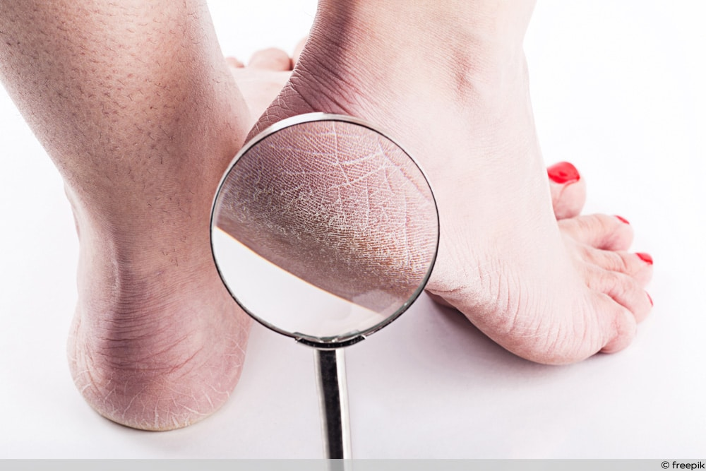 Frauenfüße mit trockener Haut