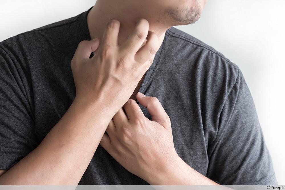 Krätze - Mann kratzt sich am Hals