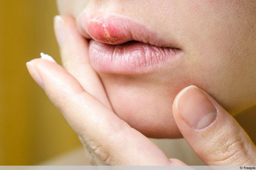Lippenherpes bei junger Frau