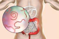 Illustration Magen-Darm-Trakt mit Würmern
